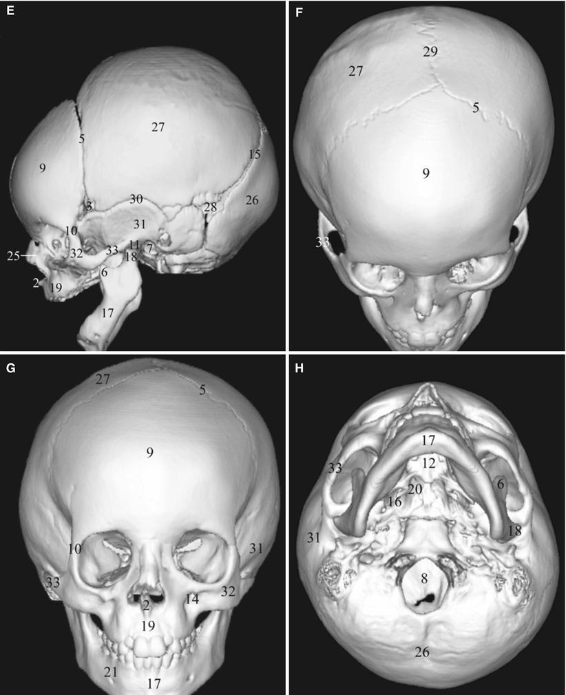 Maxillofacial Imaging Anatomy   SpringerLink