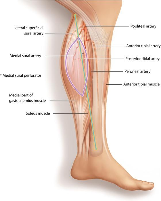 Medial Sural Artery Perforator Flap Springerlink