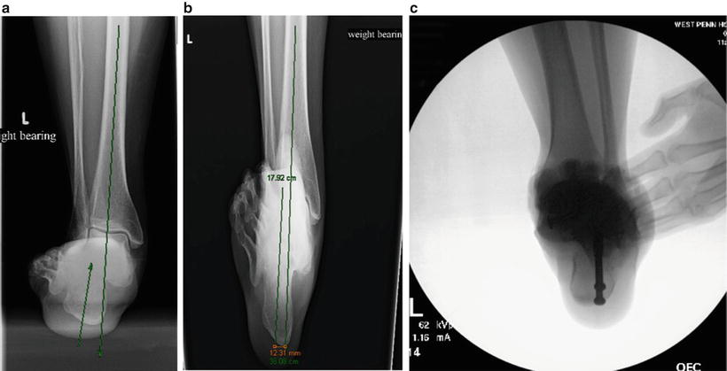 Complications of Stage II Flatfoot Surgery | SpringerLink