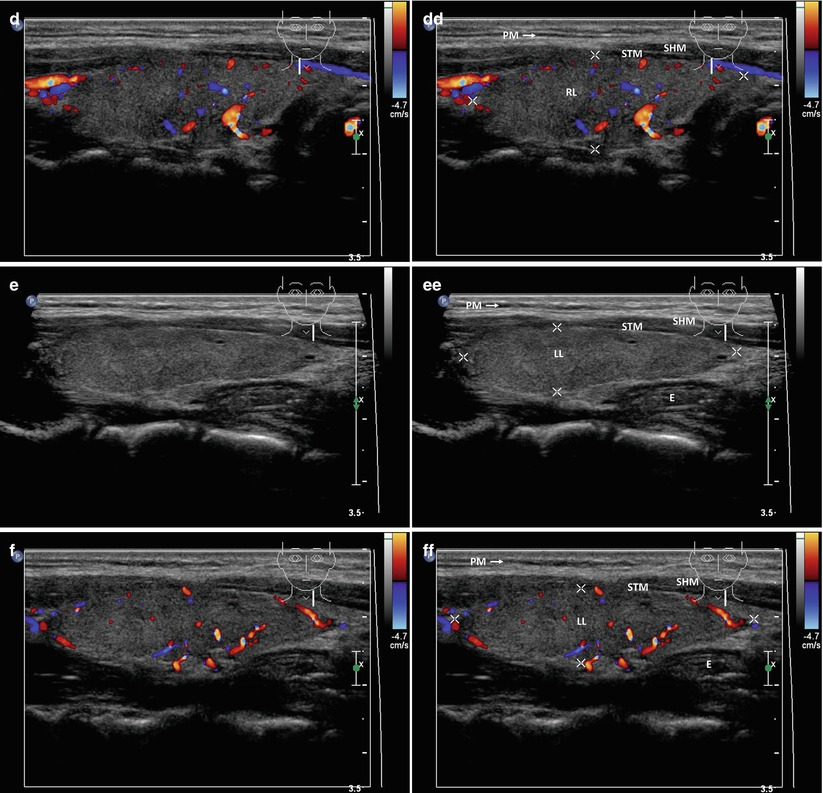 Normal Ultrasound Of Thyroid Gland And Lymph Nodes Springerlink