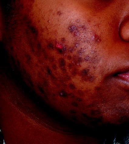 acne and rosacea springerlink