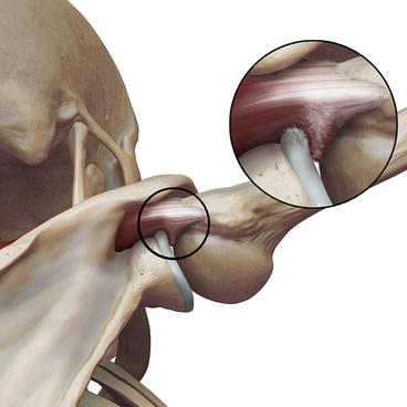 「internal impingement of the shoulder」の画像検索結果