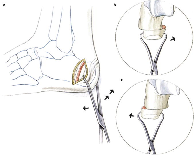 Procedures For Hindfoot Axis Deviations