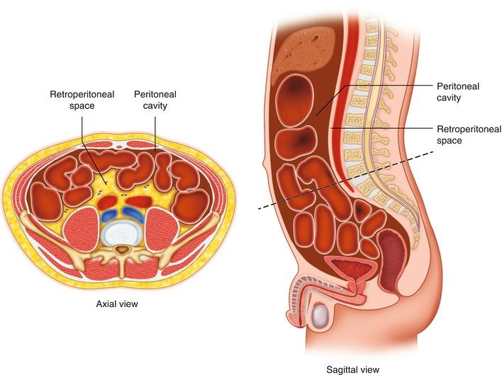 Retroperitoneal Hematoma After Celiac Plexus Block Springerlink