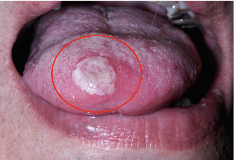 Biopsy and Oral Squamous Cell Carcinoma Histopathology
