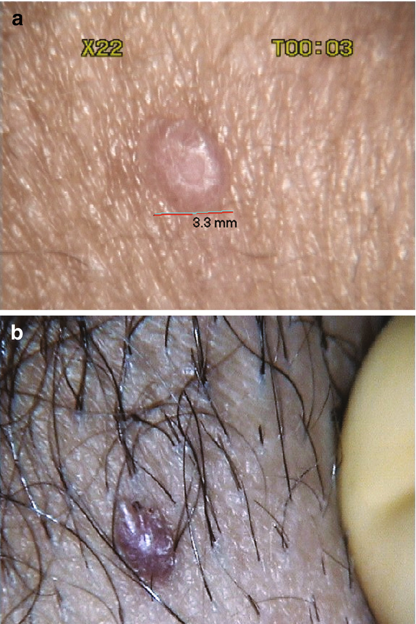 pubicus condyloma