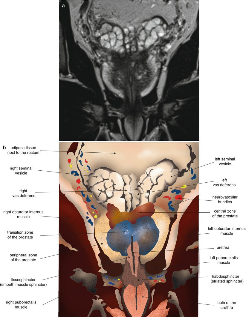 Anatomy of the Prostate   SpringerLink
