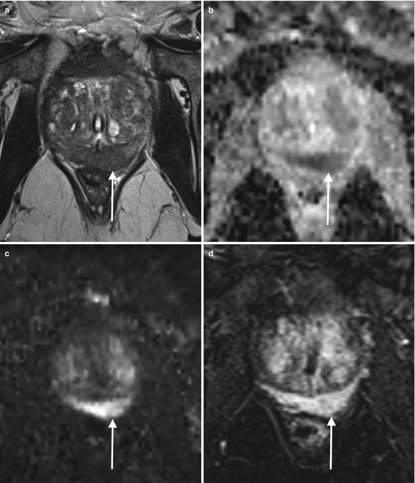 Multiparametric MRI and Prostate Cancer: Pitfalls and Tricks ...