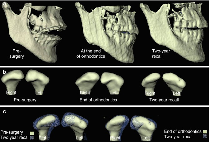 Orthodontic And Orthognathic Surgery Planning And Simulation