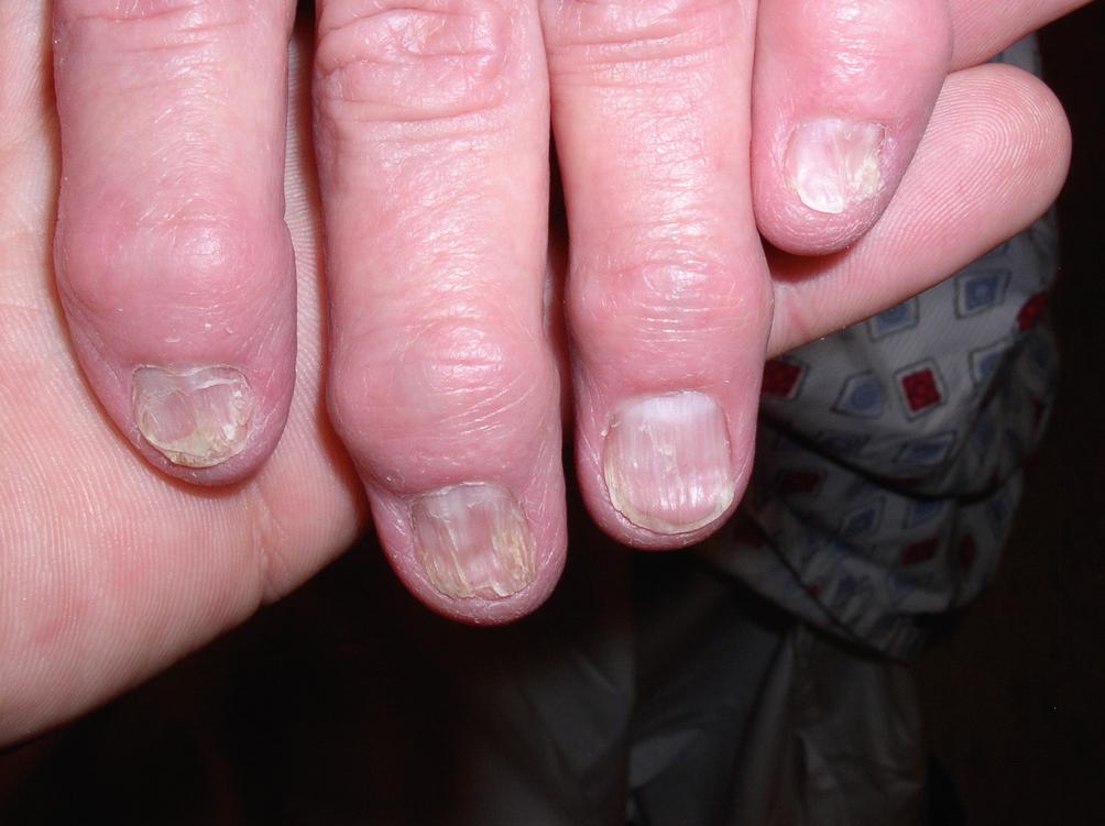 Treatment Outline for Common Nail Problems | SpringerLink