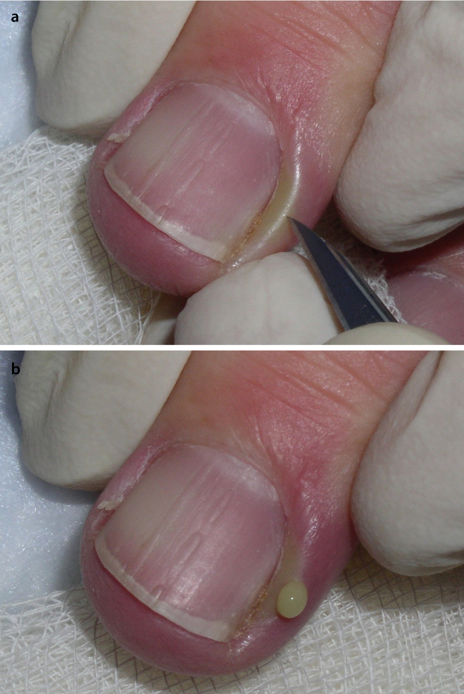 Treatment Outline for Common Nail Problems   SpringerLink
