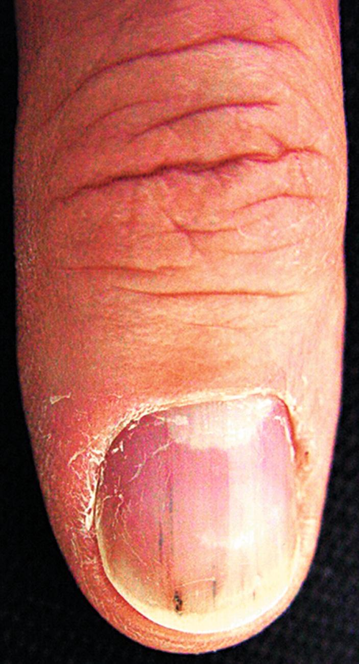 Nails in Systemic Disease | SpringerLink