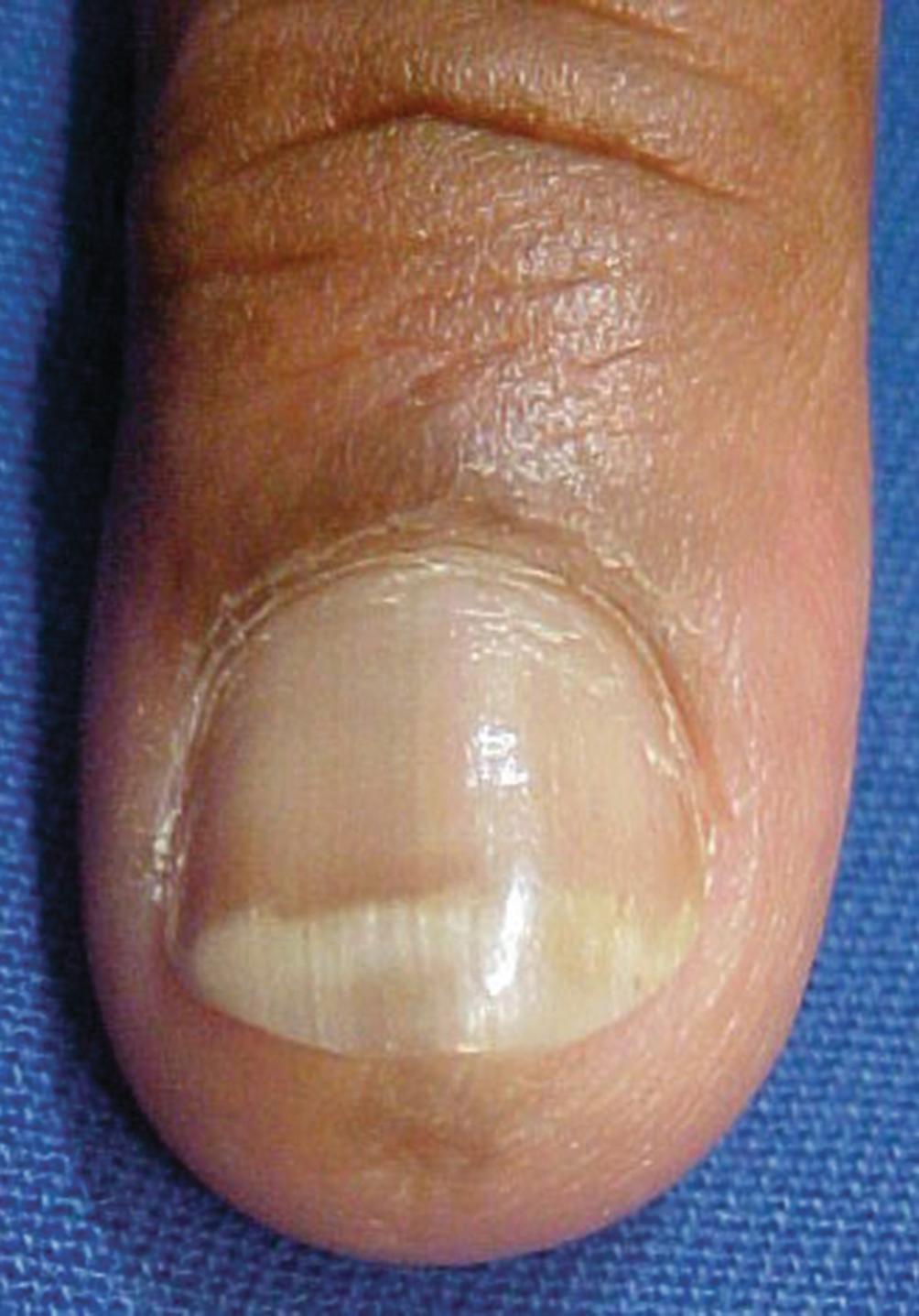 Nail Tumors | SpringerLink