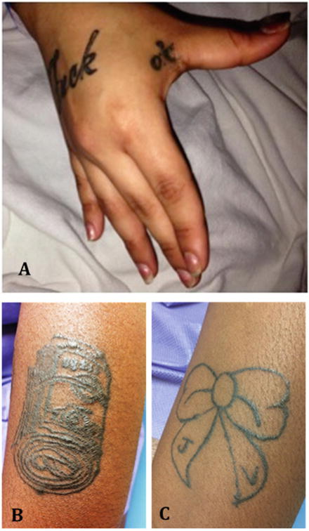 Case of a Girl with Chronic Abdominal Pain, Frequent Emergency Room