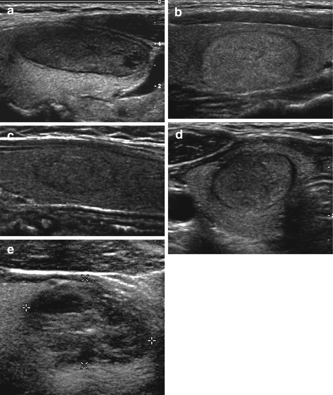 Ultrasound Of Thyroid Nodules Springerlink