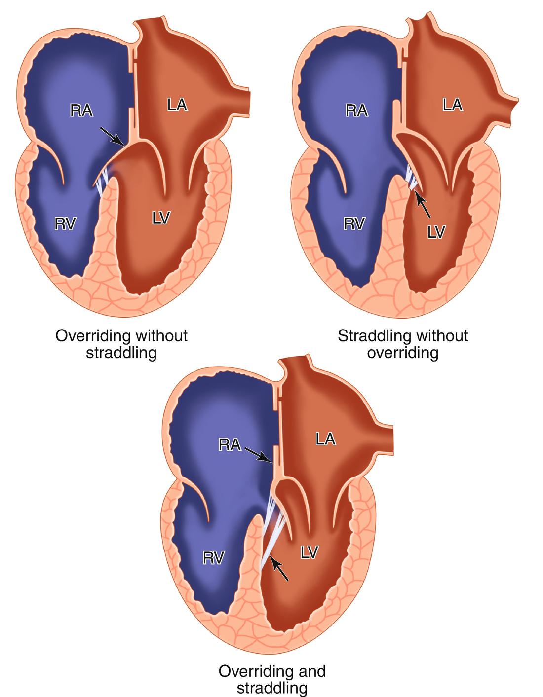Terminology Defining Cardiac Position Chamber Morphology And Van