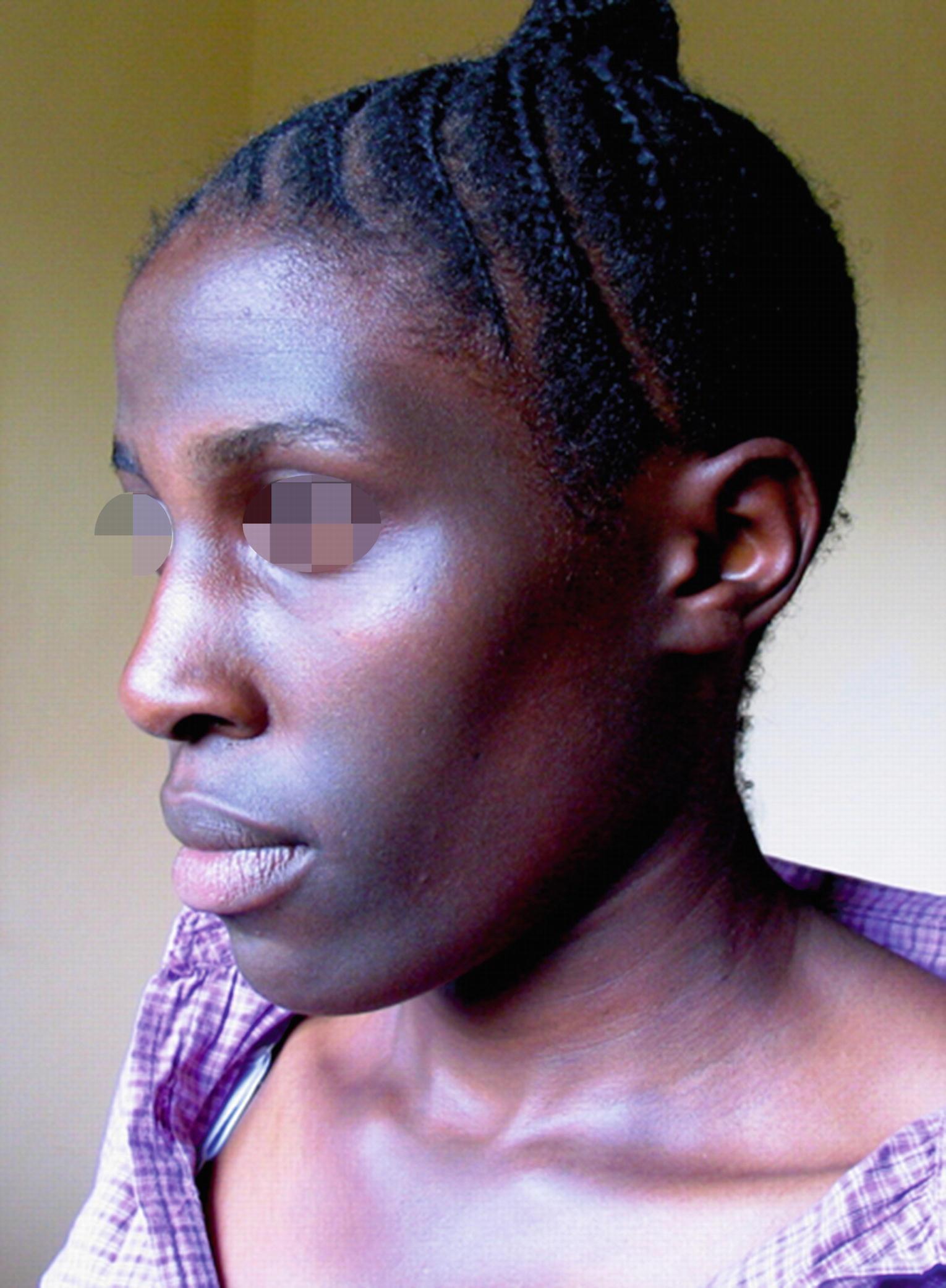 Facial Pigmentary Disorders   SpringerLink