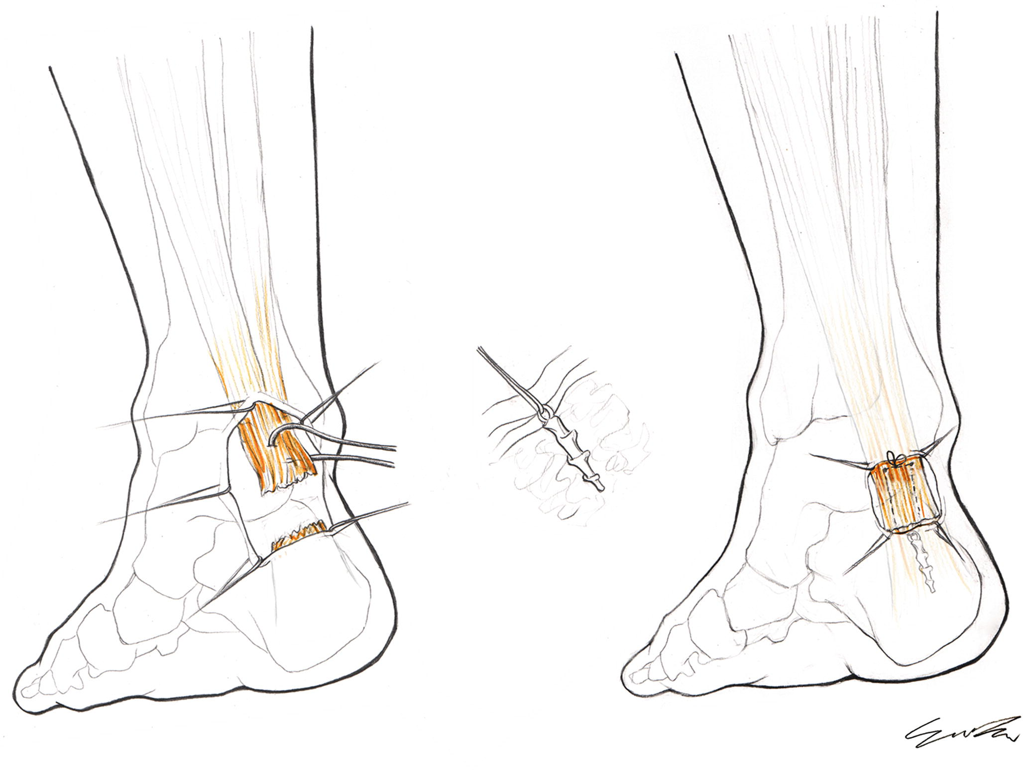 subcutaneous rupture of the achilles tendon springerlink Tendons in Your Ankle open image in new window