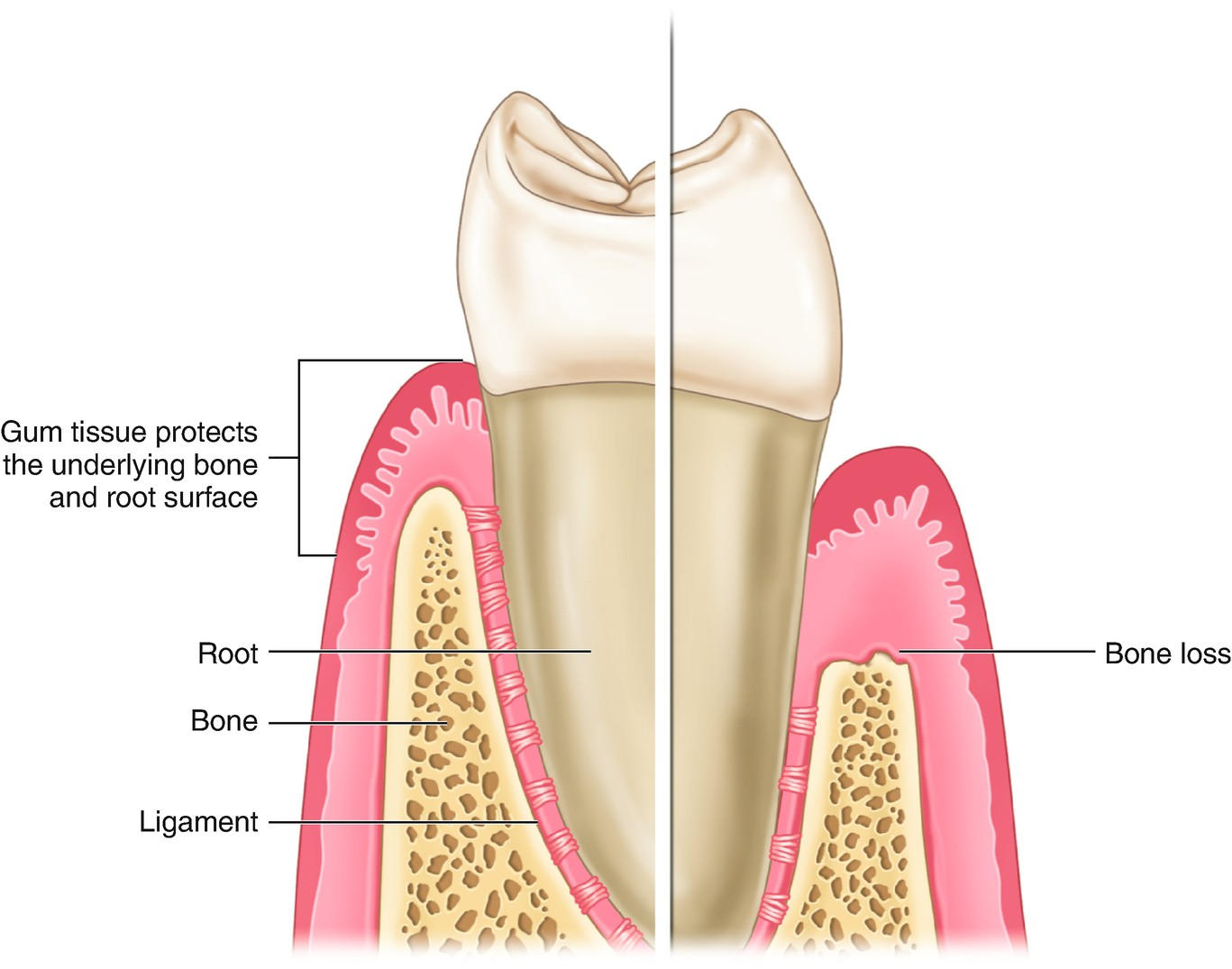 Definition Of Gingival Recession And Anatomical Considerations