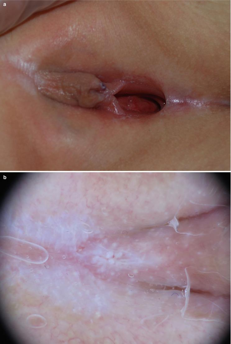 Vulva lichen sclerosus Vulvar Lichen