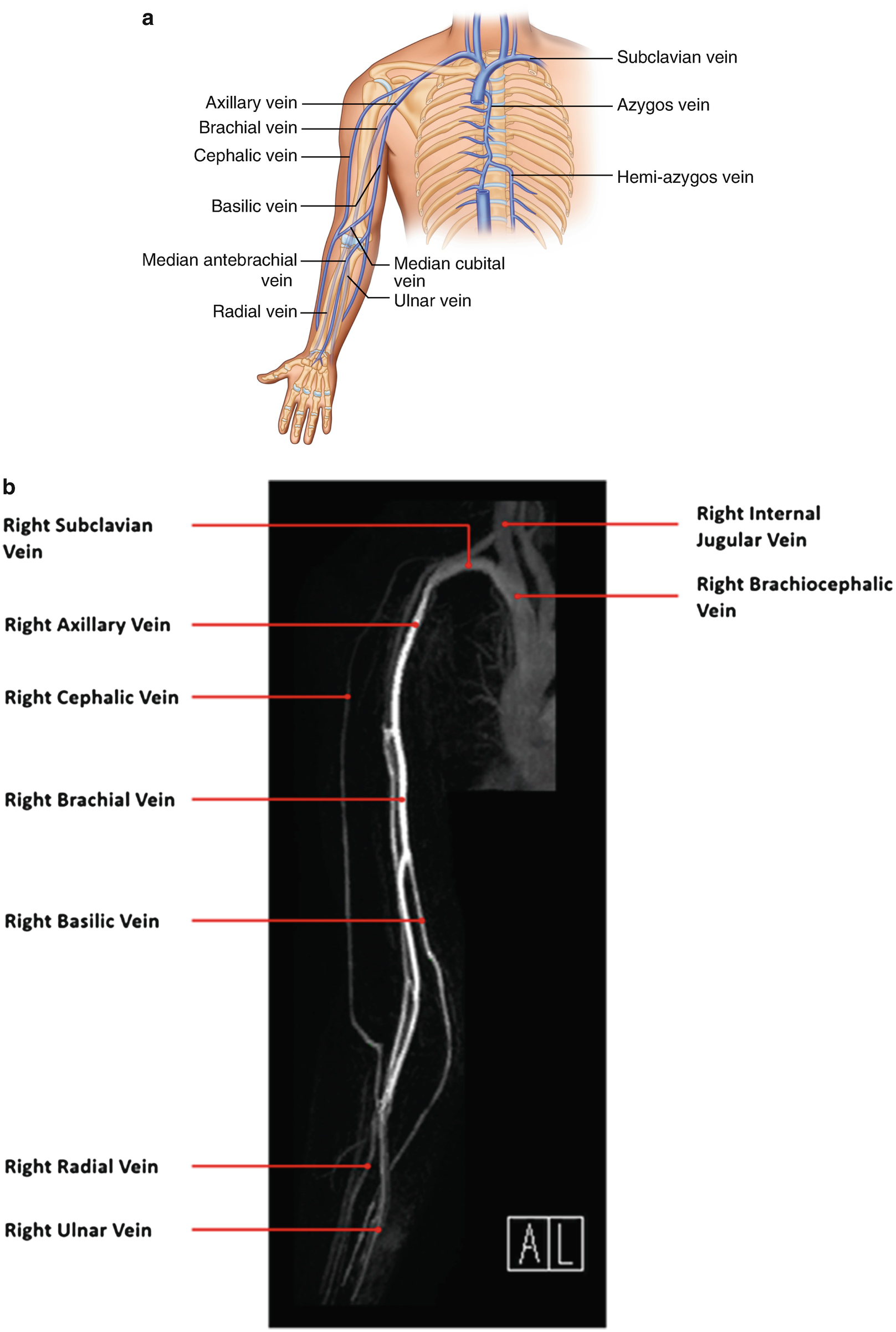 The Ir Road Map Vascular Anatomy Overview Springerlink