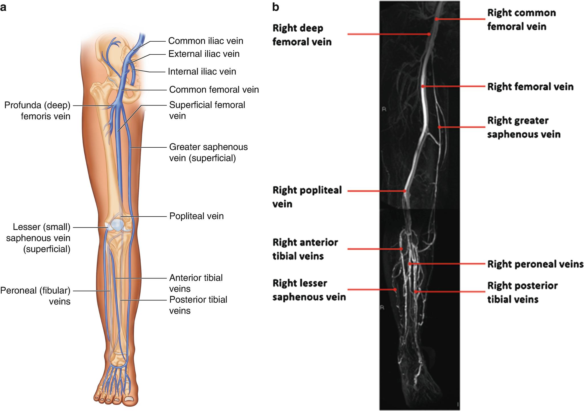 Modern Femoral Vein Anatomy Adornment - Anatomy and Physiology ...