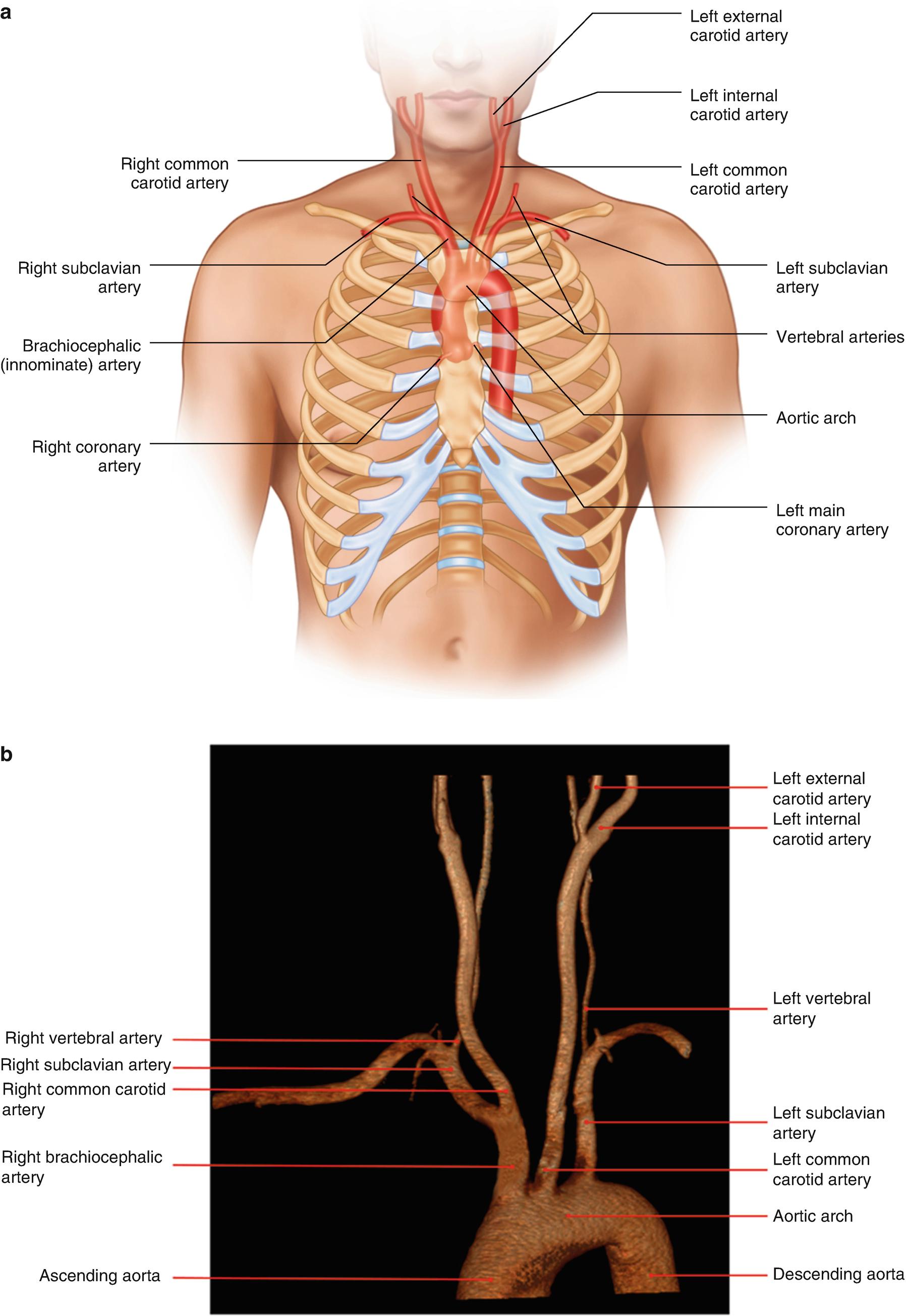 The Ir Road Map Vascular Anatomy Overview Springerlink