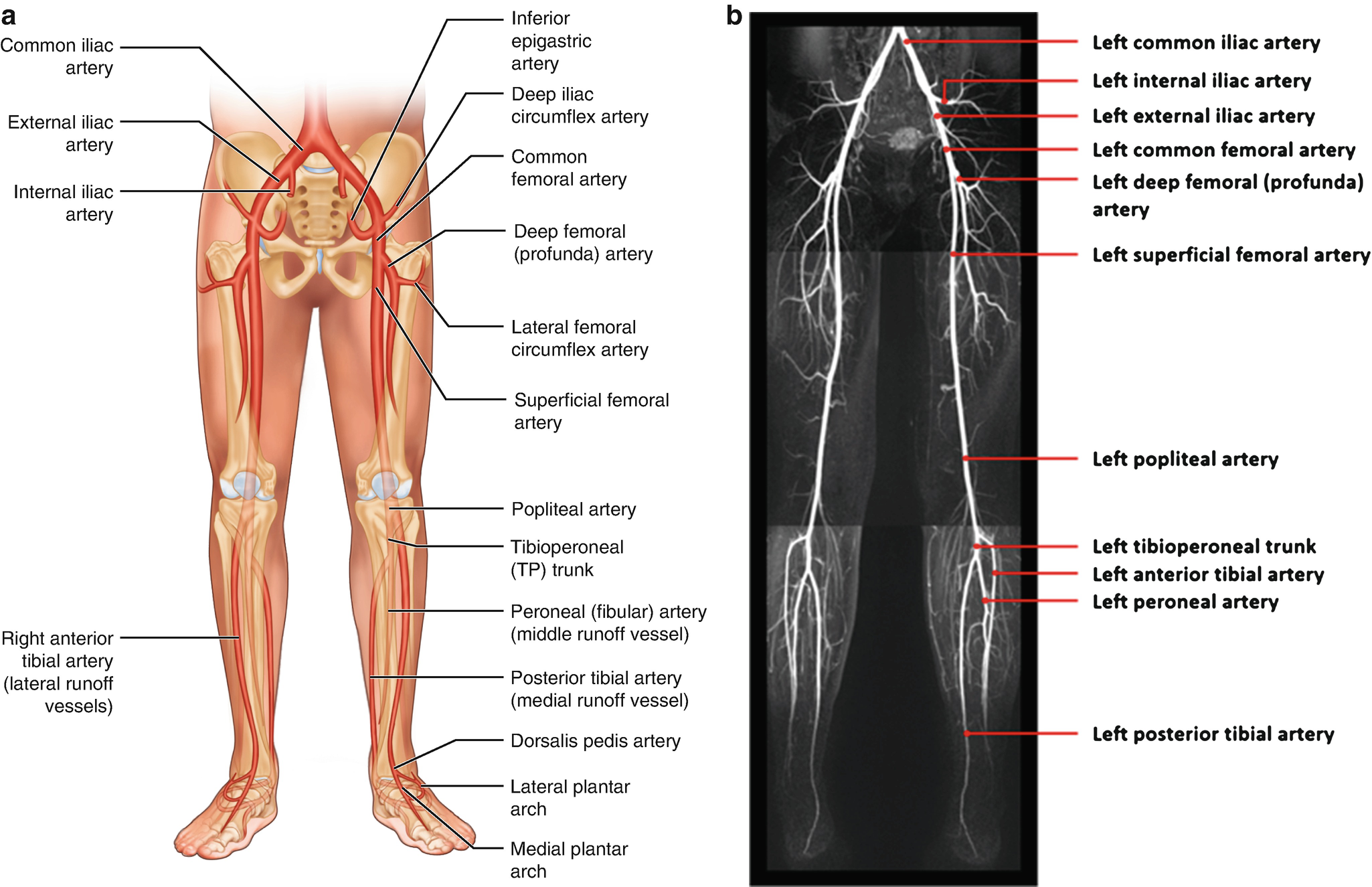 The IR Road Map: Vascular Anatomy Overview | SpringerLink