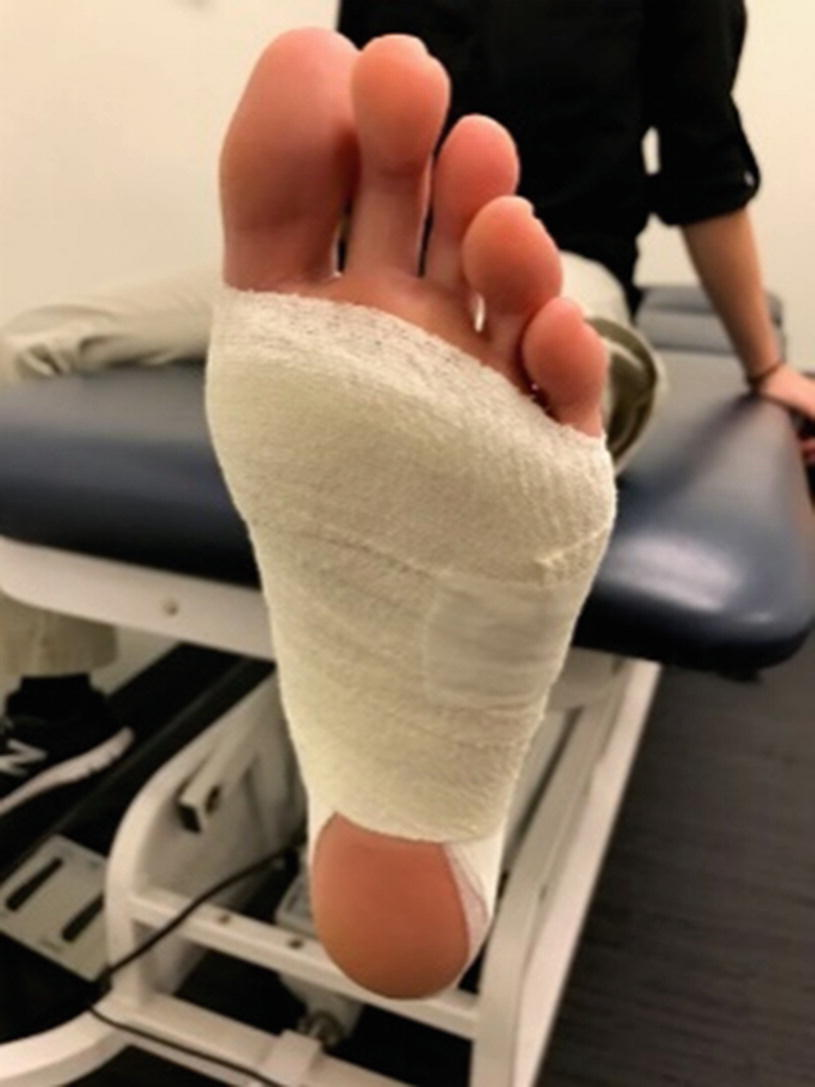 Acute Management of Common Foot and Ankle Injuries