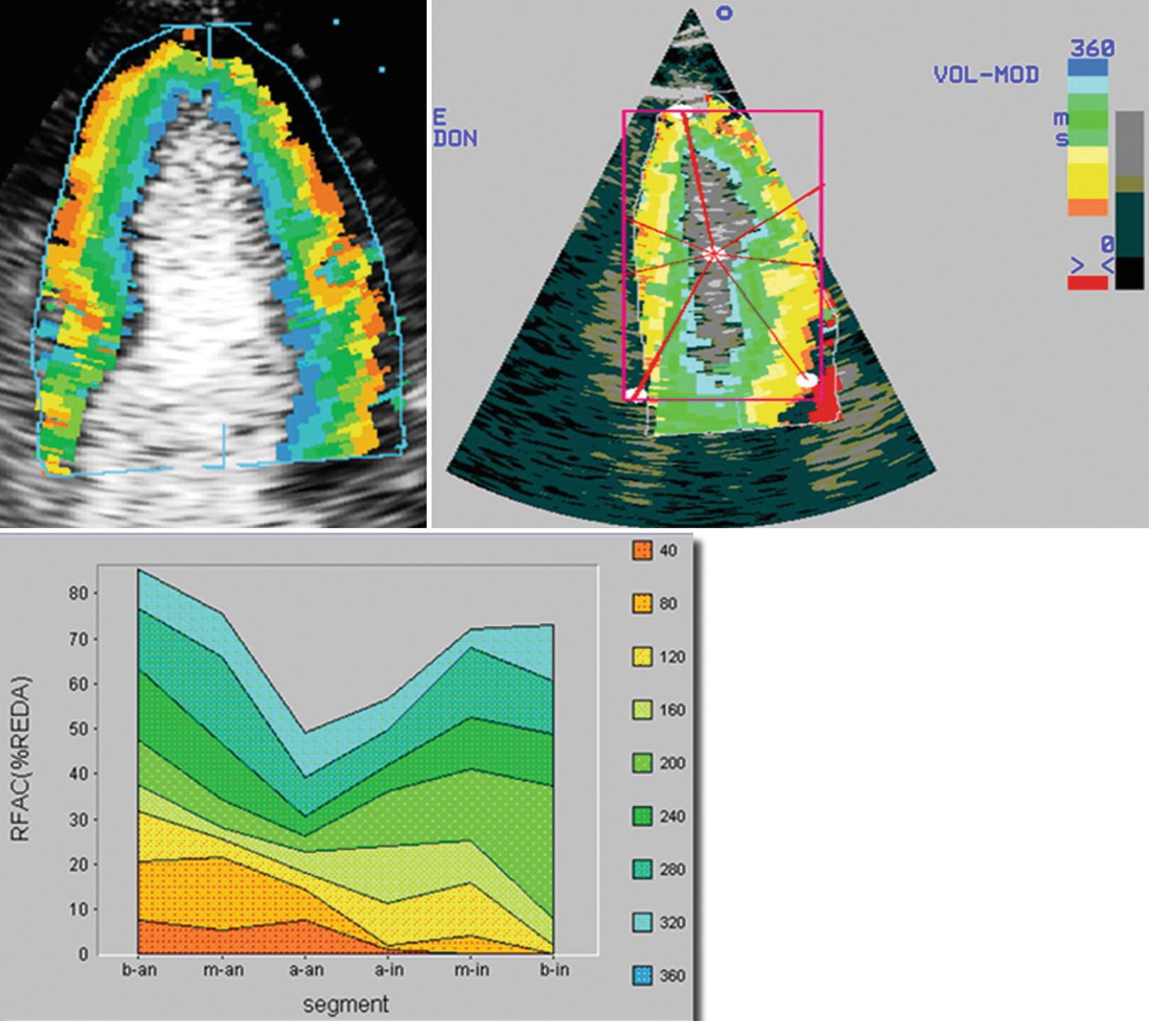 Contrast Echocardiography | SpringerLink