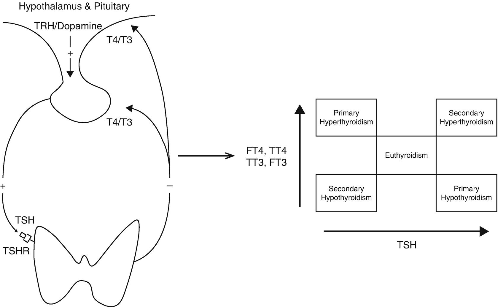 Laboratory Testing in Thyroid Disorders   SpringerLink