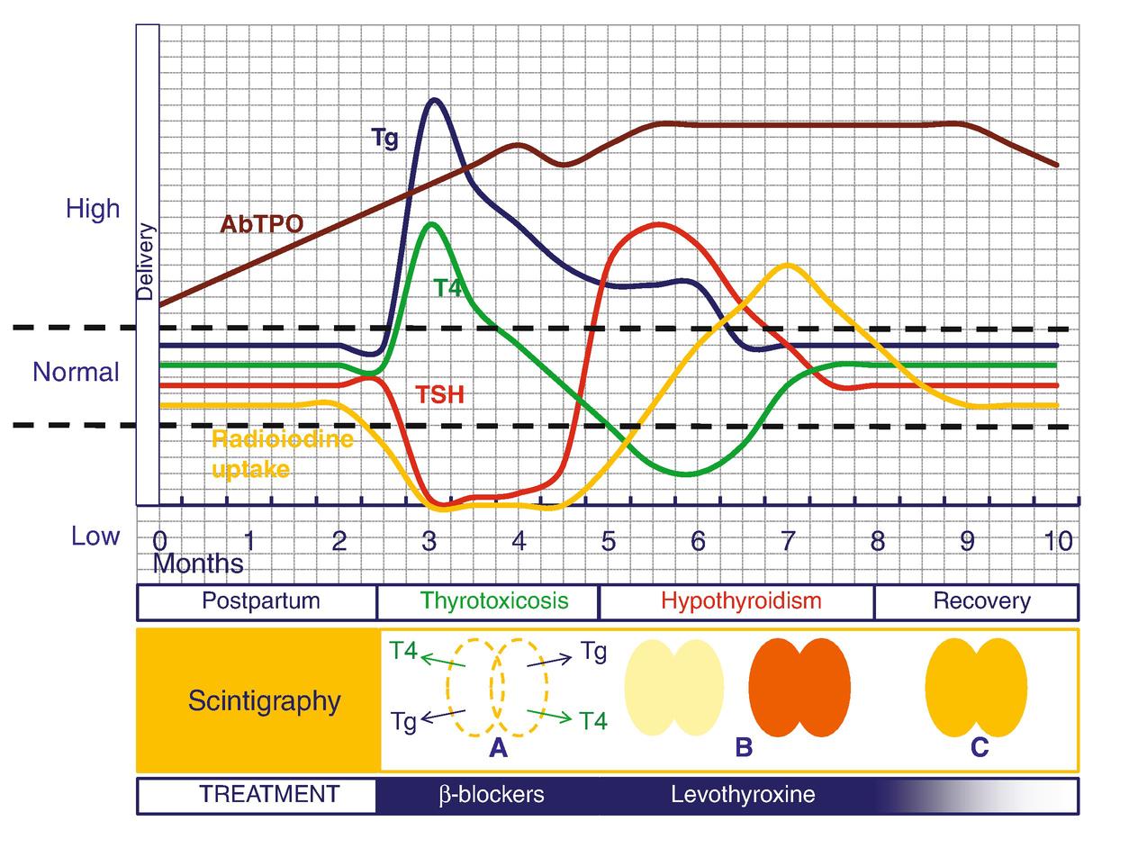 Postpartum Thyroiditis | SpringerLink