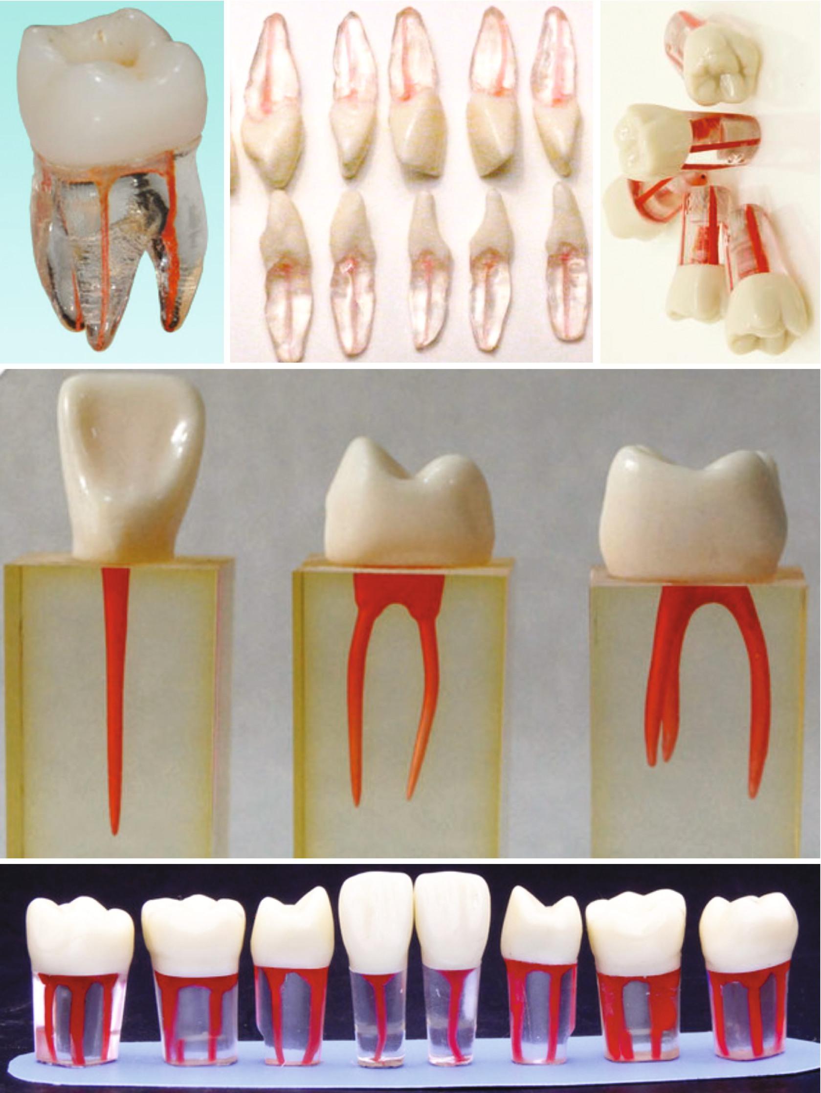 Contemporary Strategies for Teaching Internal Anatomy of Teeth ...