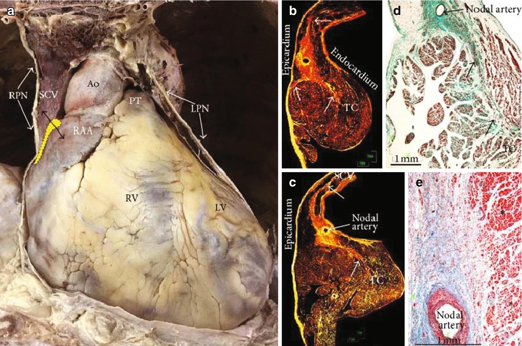 Right Heart Anatomy A Short Uptodate Springerlink