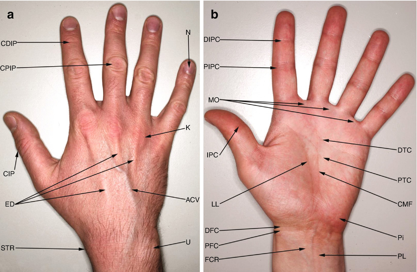 Gross Anatomy Of The Human Hand Springerlink