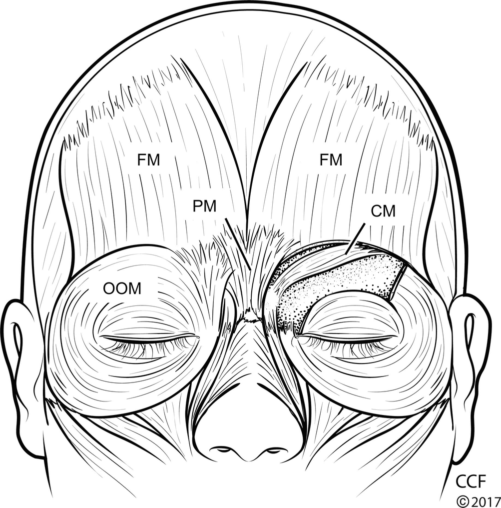 applied surgical anatomy of the ocular adnexa springerlink External Fixator Lower Extremity open image in new window