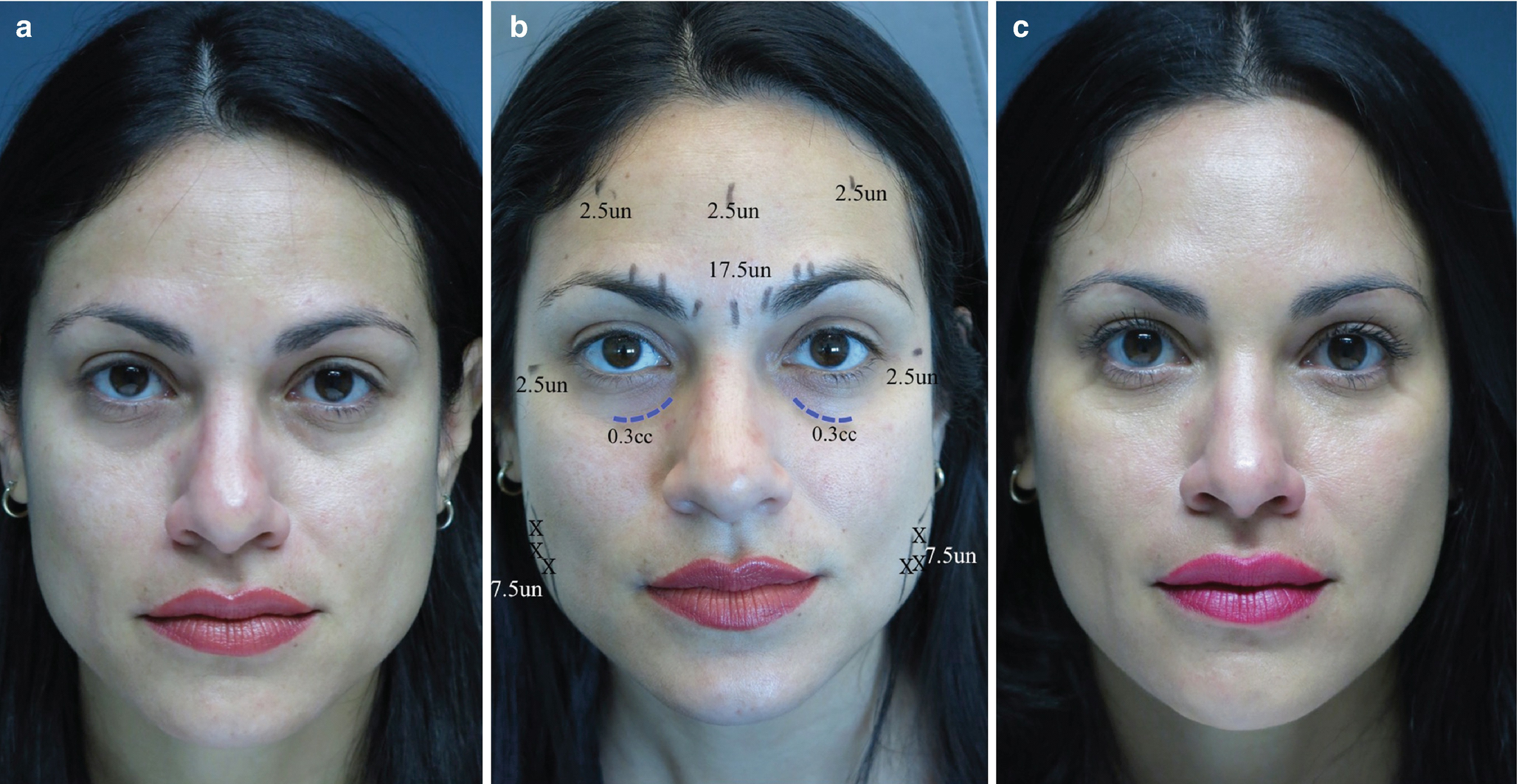 Periocular Rejuvenation with Dermal Fillers | SpringerLink