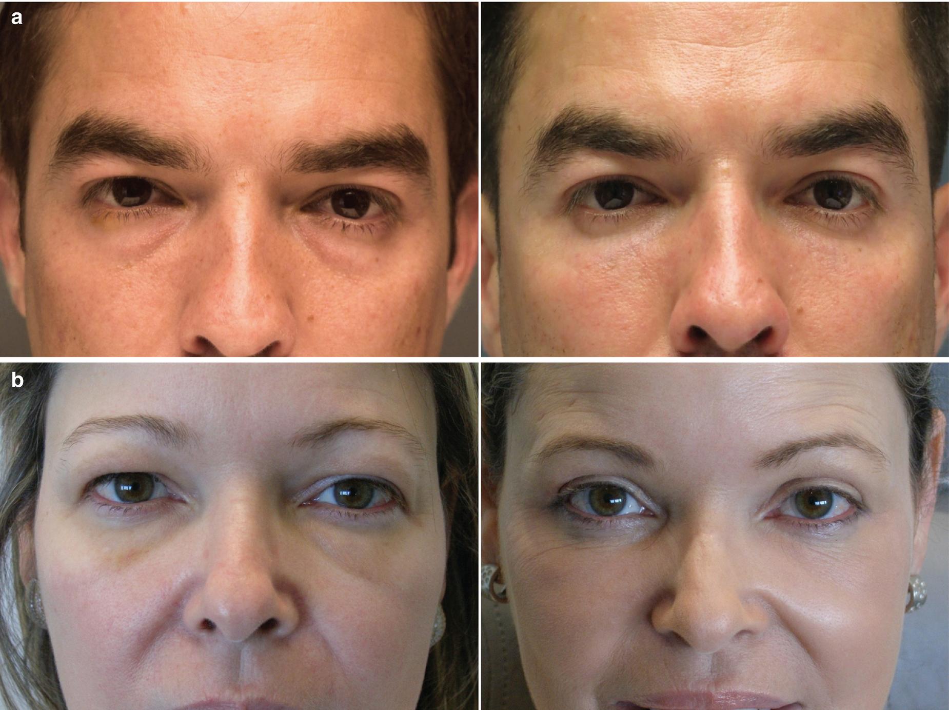 Periocular Rejuvenation with Dermal Fillers | SpringerLink