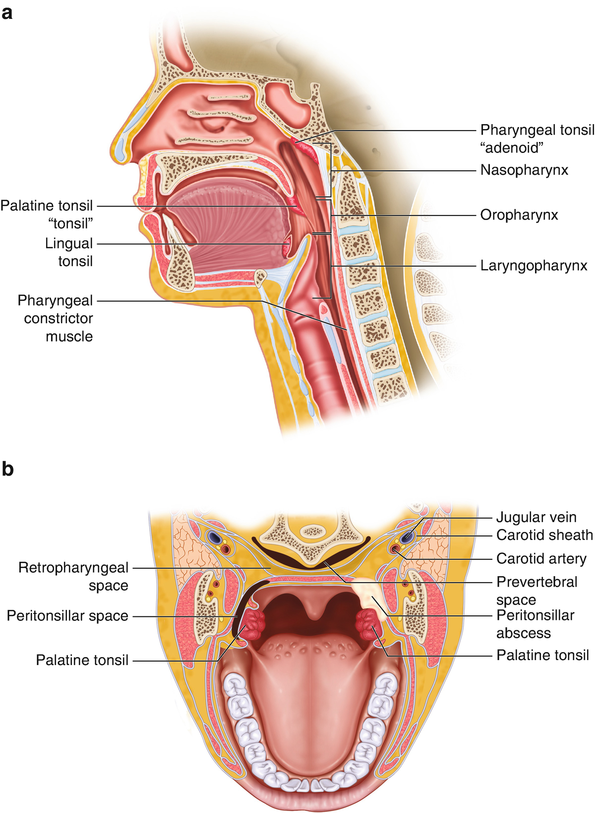 Acute Pharyngitis, Tonsillitis, and Peritonsillar Abscess