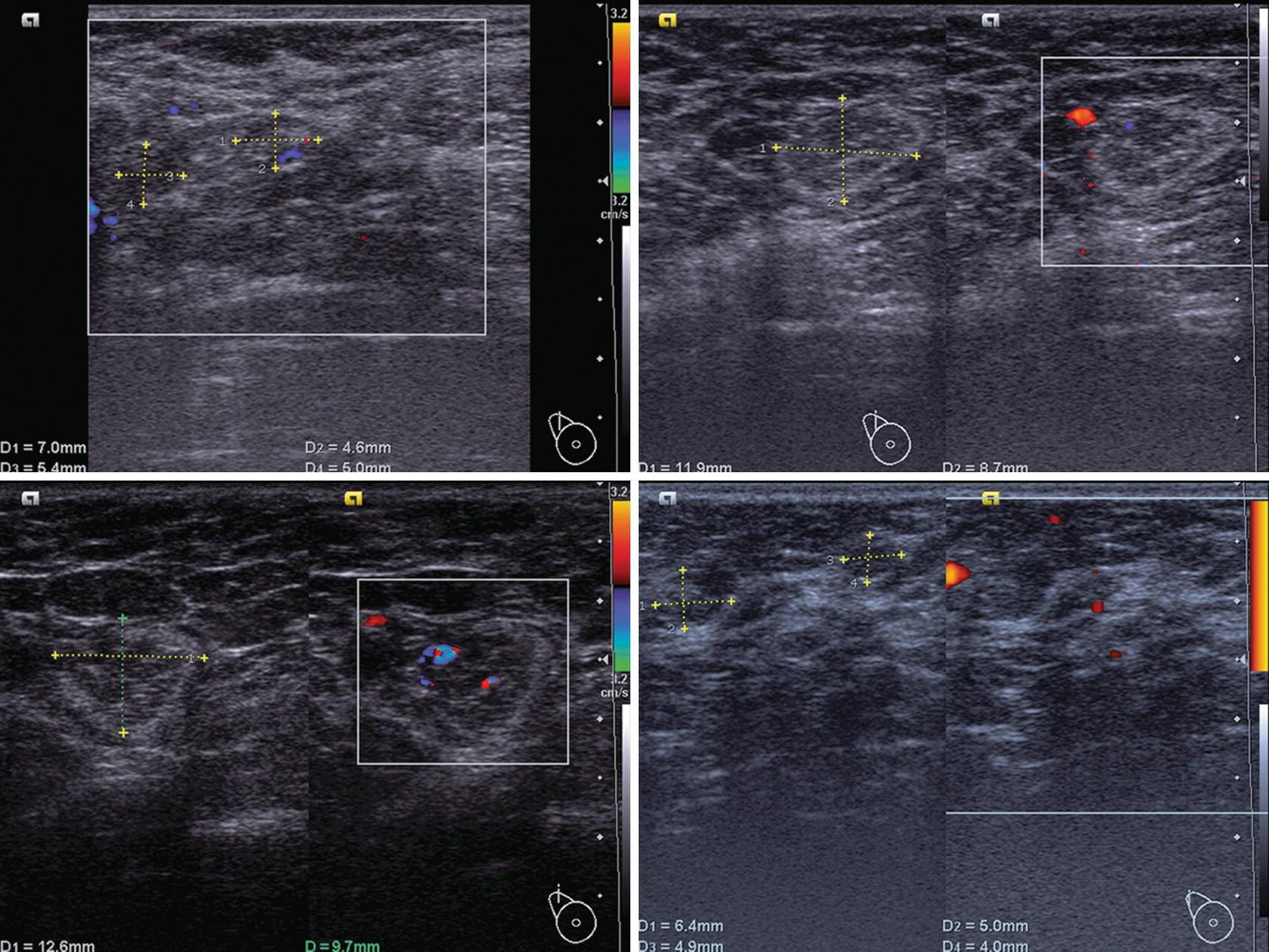 Ultrasound of Regional Lymph Nodes in Breast Cancer