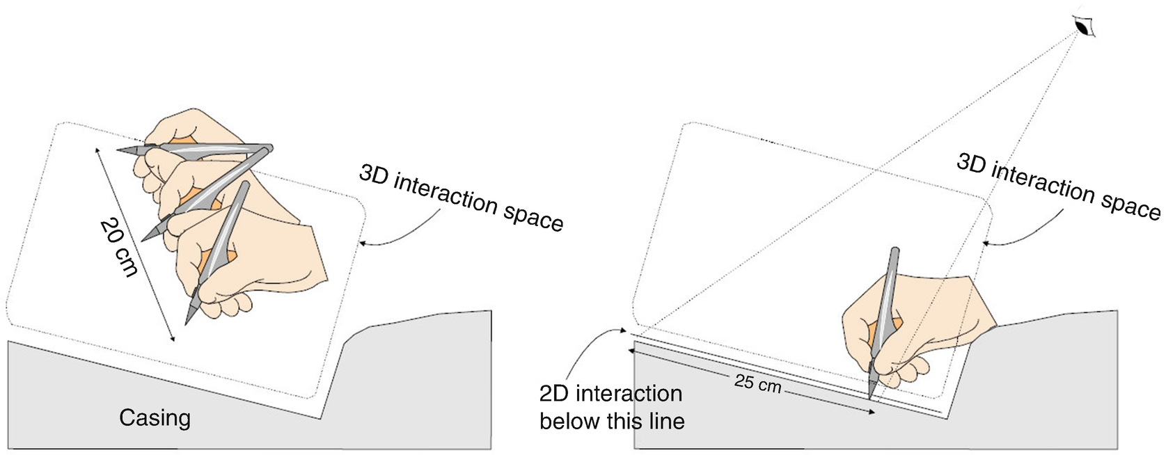 Patient Specific Virtual Reality Simulation For Minimally Invasive Stair Anatomy Drawing Elements Parts Illustration Diagram Open Image In New Window