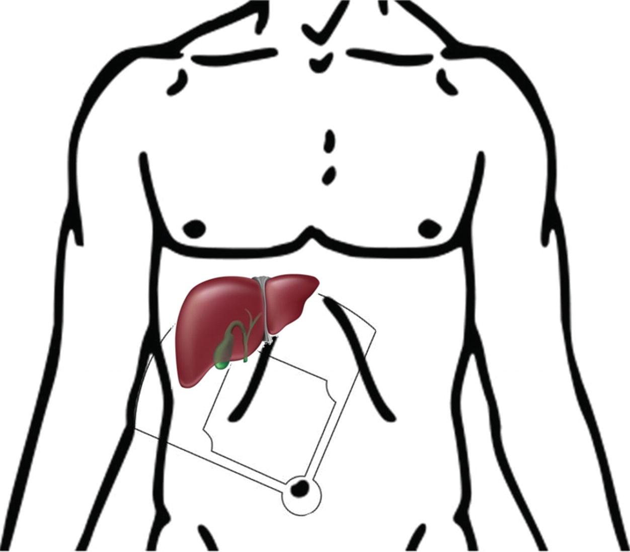 fundamentals of basic laparoscopic setup springerlink Operating Room Staff Nurse Resume open image in new window