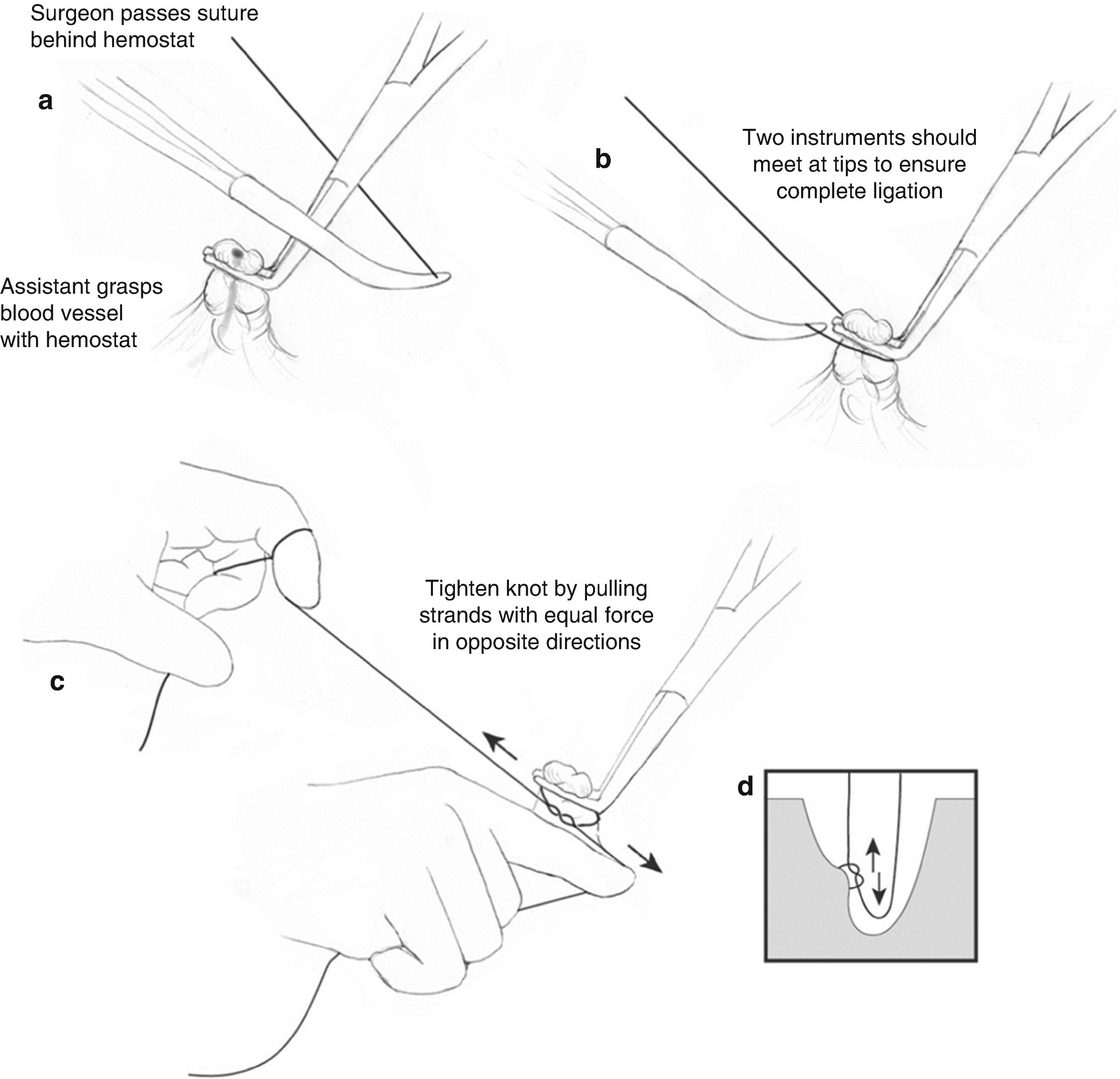 Fundamentals Of Sutures Needles Knot Tying And Suturing Technique Hercules Foot Switch Wiring Diagram Open Image In New Window