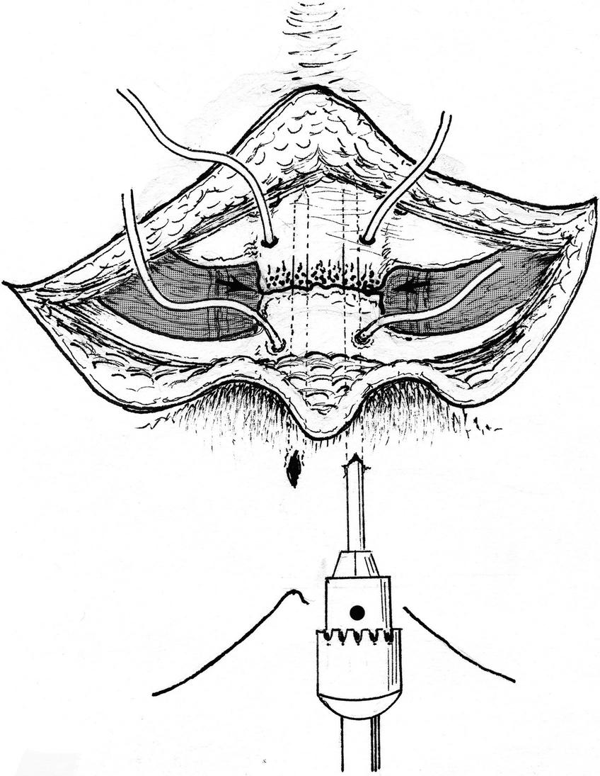 Repair of Isolated Sternal Fracture   SpringerLink