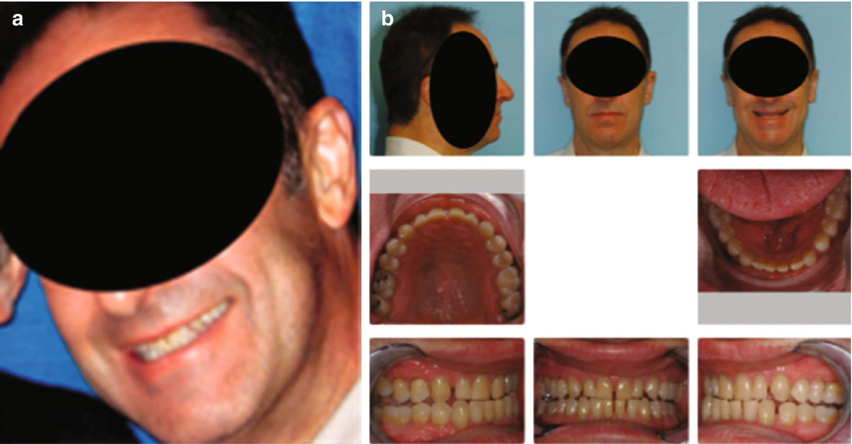 Airway Kening Orthodontic Orthopedic Development A Correlation Of Facial Balance Tmd And Airway For All Ages Springerlink