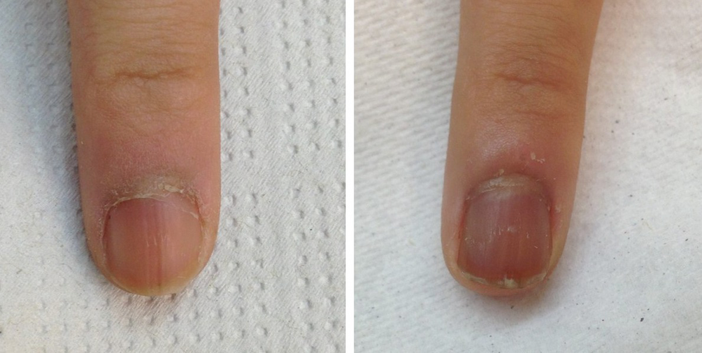 Lesion On The Nails Springerlink