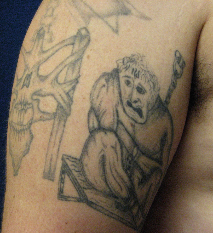 c757528af History and Epidemiology of Tattoos and Piercings: Legislation in ...