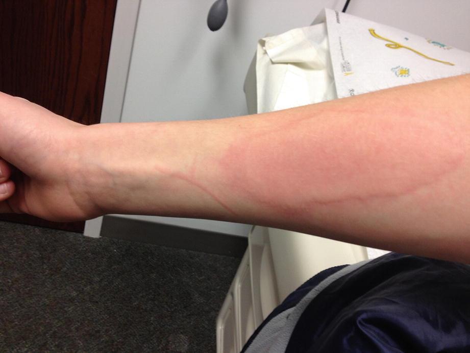 Other Allergic Conditions: Venom Hypersensitivity, Drug