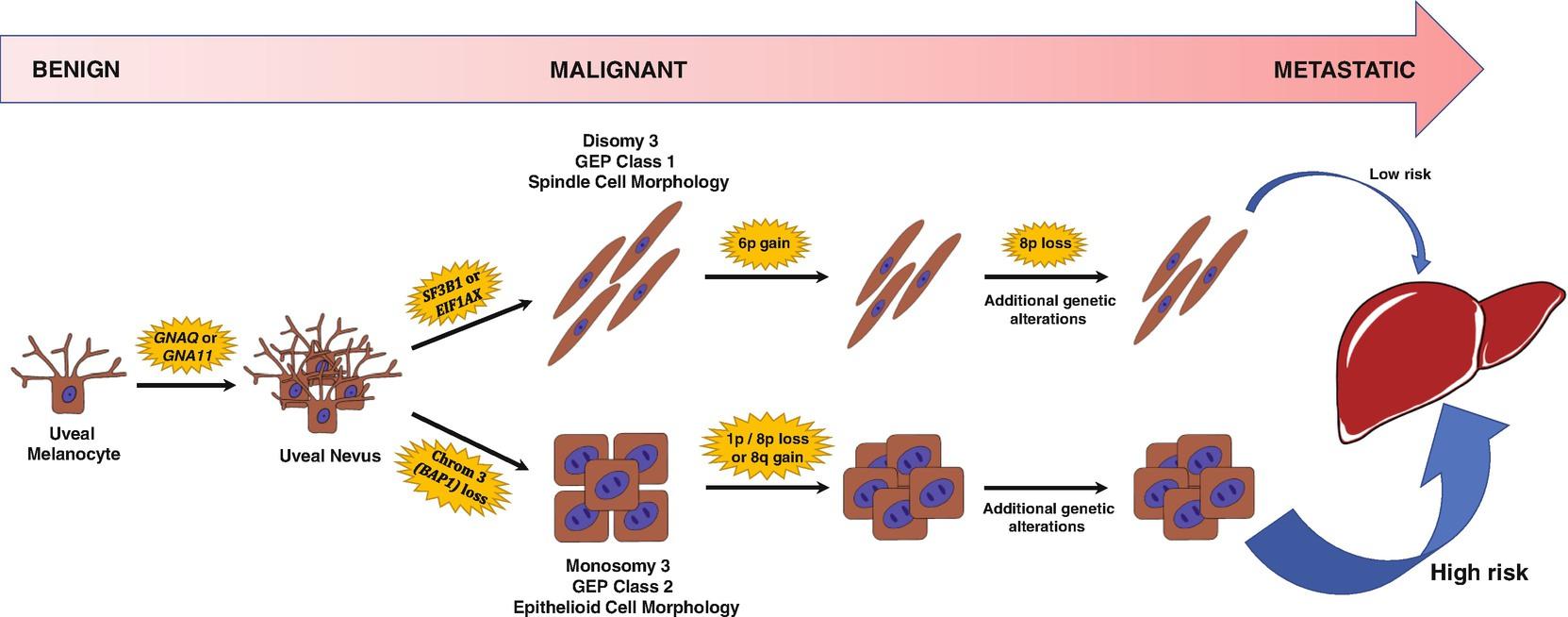 Uveal Melanoma | SpringerLink