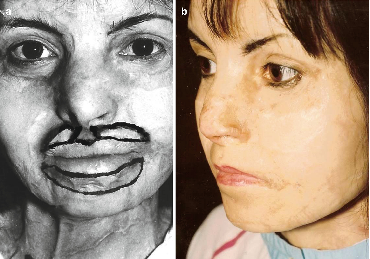 Single-Stage Upper Lip and Philtrum Reconstruction in Burned